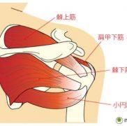 整形外科 肩の痛み 疾患:腱板断裂