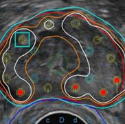 前立腺癌の放射線治療